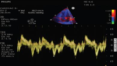 Cardiopulmonary Ultrasonography for Severe Coronavirus Disease 2019 Patients in Prone Position