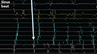 Atrial Fibrillation Structural Substrates: Aetiology, Identification and Implications