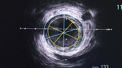 Role of Intravascular Ultrasound in Guiding Complex Percutaneous Coronary Interventions