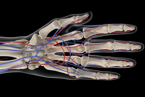 Radial artery occlusion in a patient with lupus, antiphospholipid syndrome, andRaynaud phenomenon: amultimodalapproach