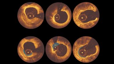 Patient Selection and Procedural Considerations for Coronary Orbital Atherectomy System