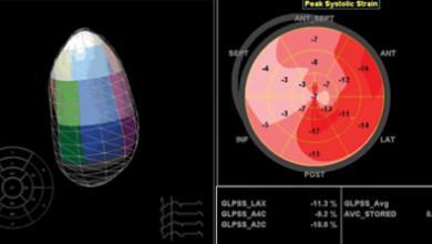 Novel Imaging Techniques for Heart Failure