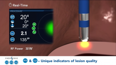 New Interface - TactiCath Contact Force Ablation Catheter