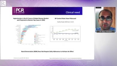 PCR e-Course 2020: Crossover Results From The RADIANCE-HTN SOLO Trial