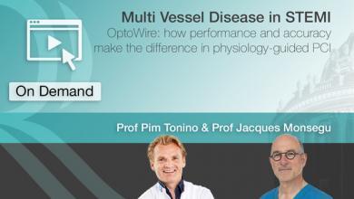 Multi Vessel Disease in STEMI