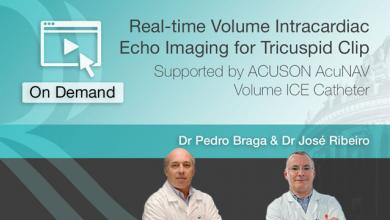 Real-time volume intracardiac echo imaging for Tricuspid clip
